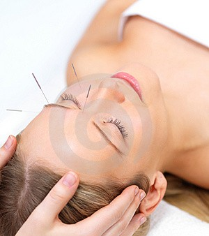 corteX acupuncture